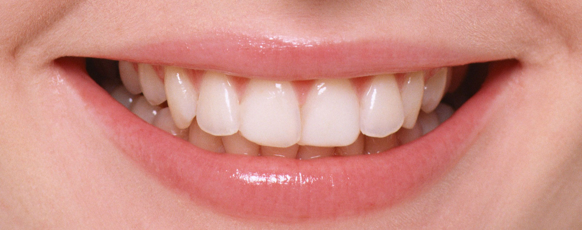 зубы-род